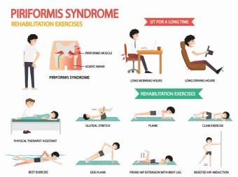 peroneális neuropathia és súlycsökkenés