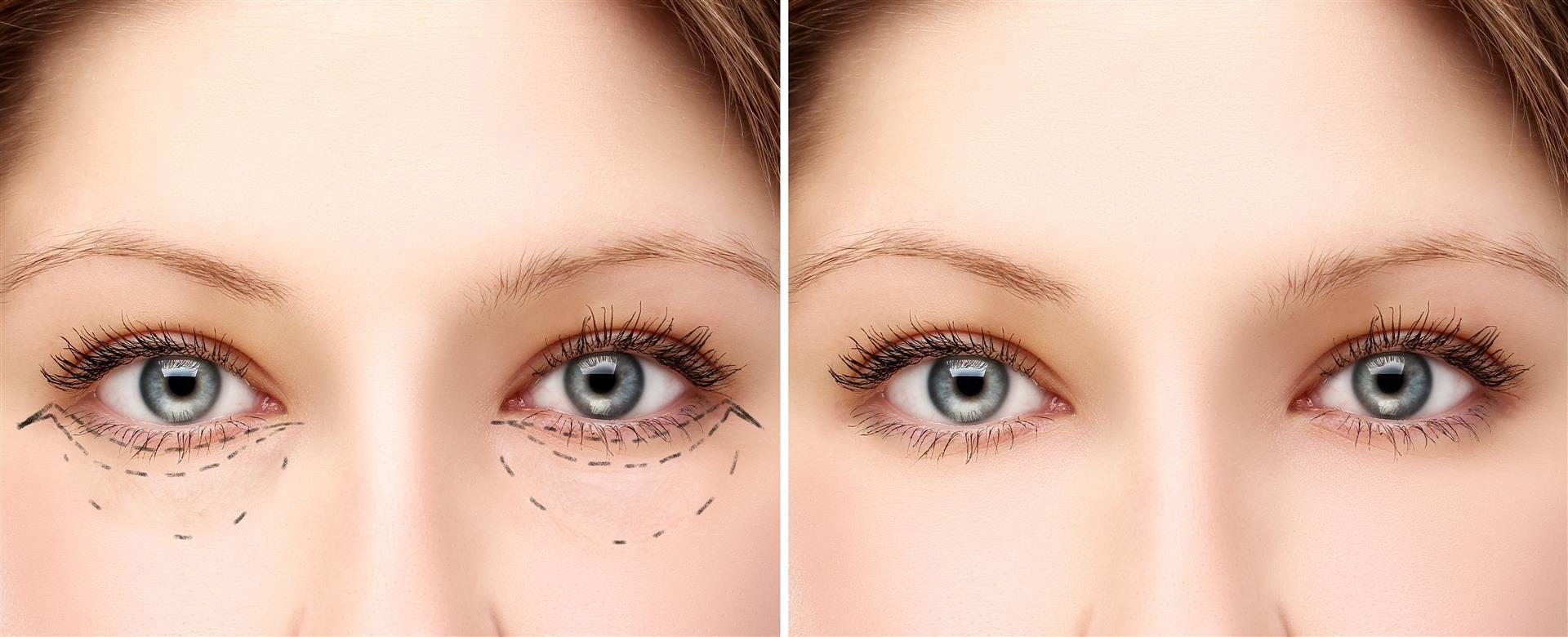 hogyan lehet elveszíteni a felső szemhéj zsírját