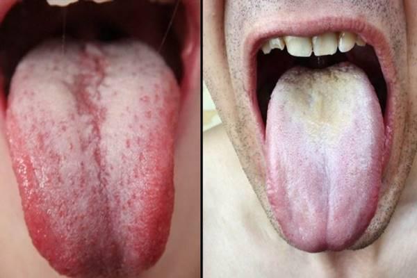 zsírégető szájszárazság