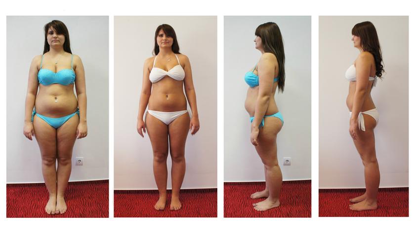 30 kg súlycsökkenés 3 hónap alatt)