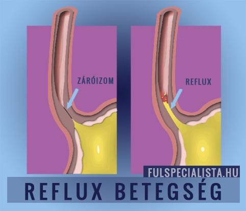 A reflux diéta alapelvei