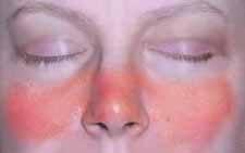 lupus hogyan lehet lefogyni