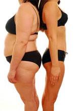 hogyan lehet eltávolítani a zsírt? fogyás egészséges táplálkozás