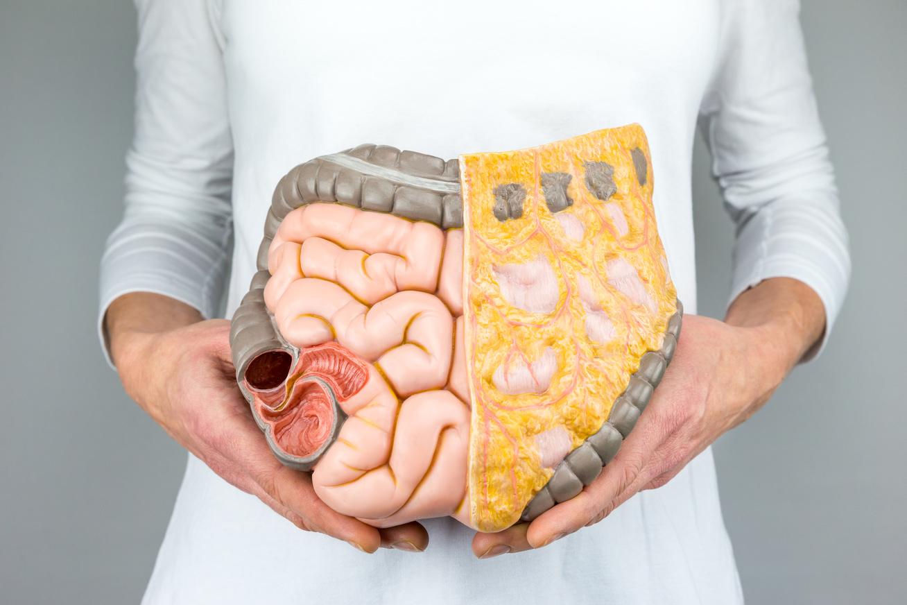 milyen a fogyás a testből?