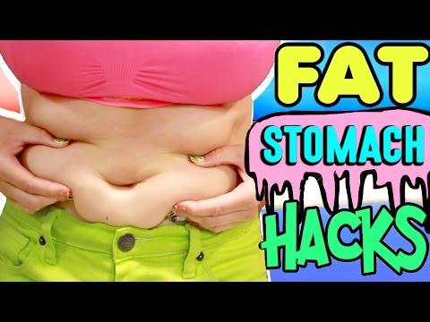 morbidly elhízott és próbál lefogyni)