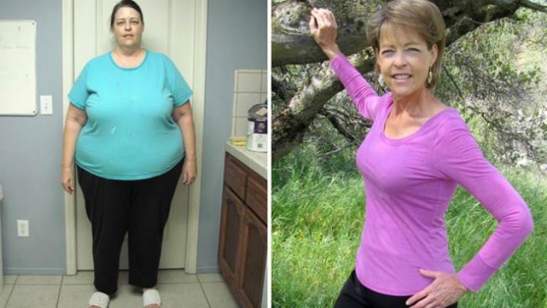 Fogyás 59 éves nő