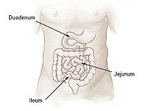 Kontaminált vékonybél szindróma (SIBO)
