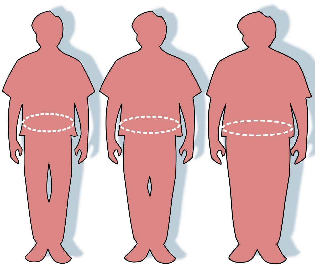95– 65 kg súlycsökkenés)