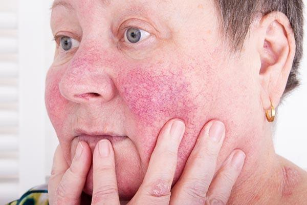 Értágulatok, rosacea