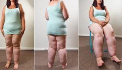 kövér beteg és majdnem halott súlycsökkenés