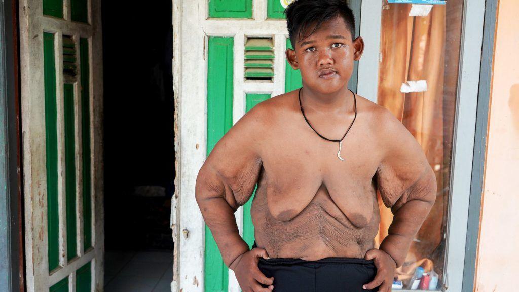kövér fiúnak le kell fogynia mondó súlycsökkenés