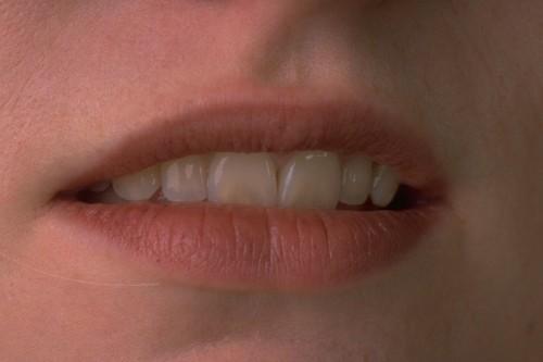 hogyan lehet elveszíteni a zsírt a szájban)