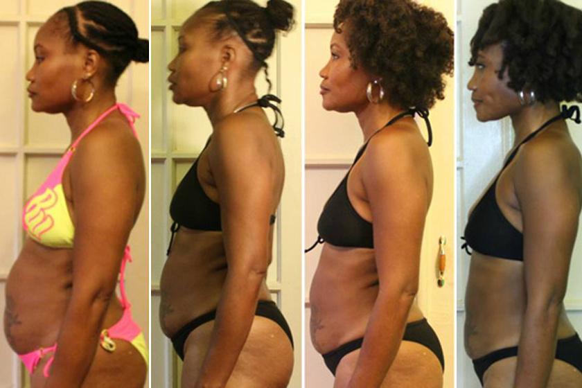 Se diéta, se edzőterem: így fogyott le 4 ruhaméretet egy év alatt a fiatal lány