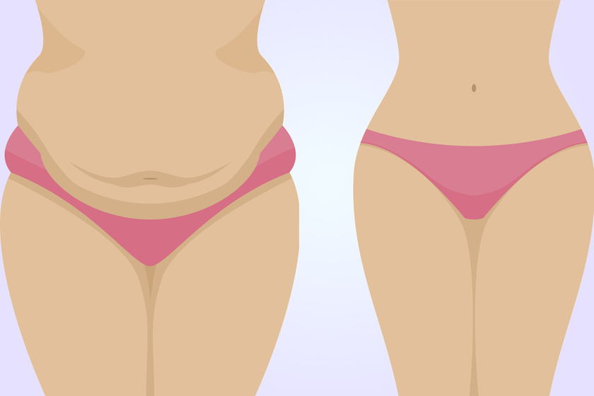 hogyan éget vastag zsírt