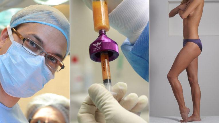 Gyakori Kérdések - Túlsúlycsökkentő Műtétek Budapest - Dr. Baranyai Zsolt