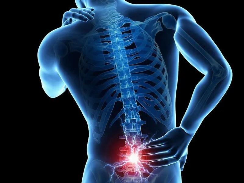 súlycsökkenés és gerincvelő stenosis