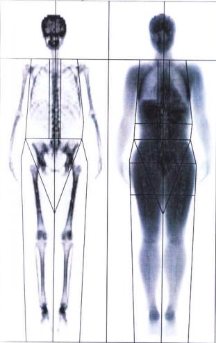 morbidly elhízott nő lefogy)