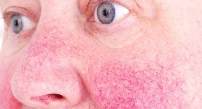 fogyás rosacea esetén