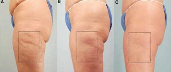test vékony tratamento cellulit
